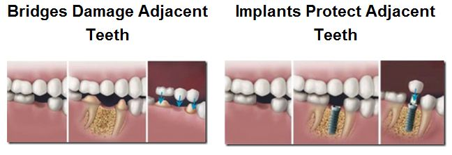 Bridge-v.-Implant
